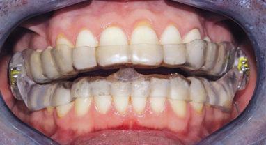 Окклюзионная шина для зубов