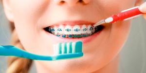 Зубная щётка для чистки брекетов