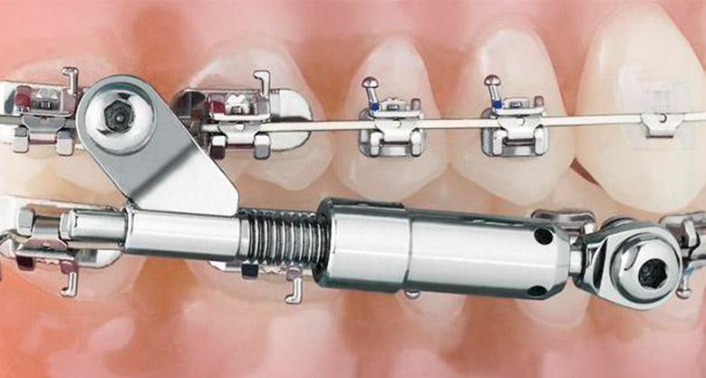 Аппарат Гербста для выдвижения нижней челюсти