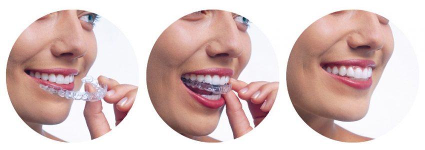 Этапы исправления неровности зубов с помощью каппы