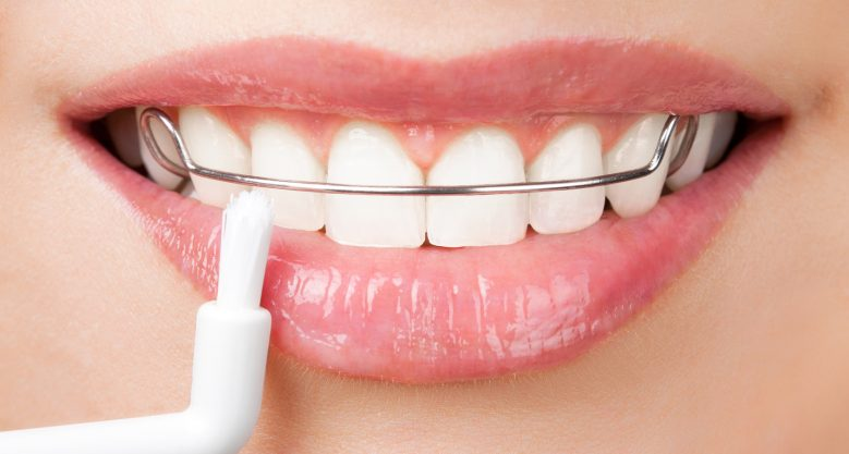 cleaning teeth with retainer